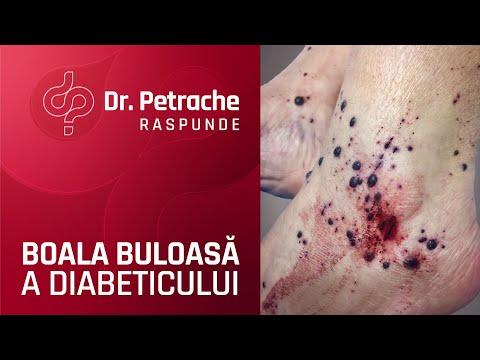 Picioarele întunecate de la varicoză
