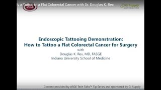 How To Apply A Tattoo To A Flat Colorectal Cancer With Dr. Douglas K. Rex