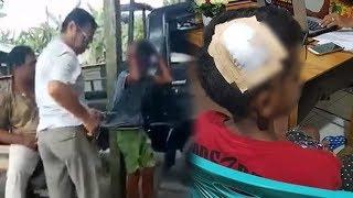 Viral Video Bocah Menangis karena Dipersekusi hingga Kepala Bocor, Polisi Tangkap Pelaku Pemukulan