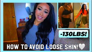 I LOST OVER 100 LBS WITHOUT LOOSE SKIN | How I Avoided Loose Skin After Weight Loss | Rosa Charice