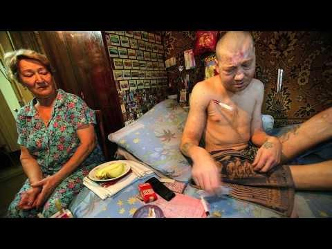 Вакцина от гепатита его последствия