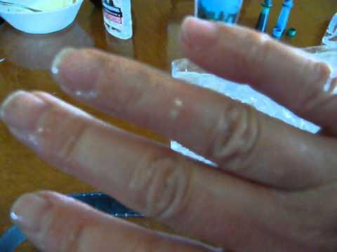 Kung paano sa pag-inom castor oil mula sa mga worm
