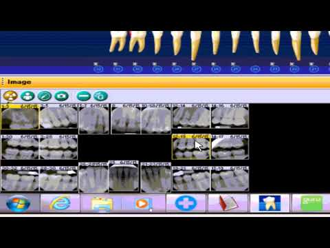 Integration with Dentrix and Dexis