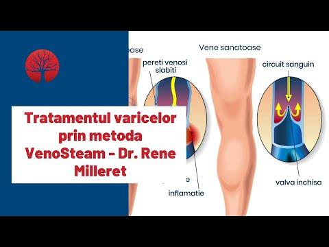 Varicoză tromboflebită tratamentul medicamentelor