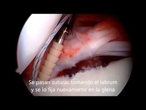 Osteocondrosis en el paso hernia