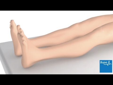 Picioare cu raze x pentru varicoză
