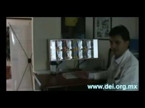 Curar la artritis de la articulación del codo
