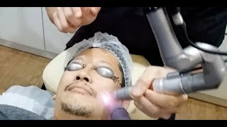 q Switch Nd  YAG Laser by Dr Nigel Ong