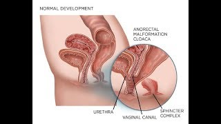 Persistent Cloaca!! How are  Persistent cloaca (Medical Condition)