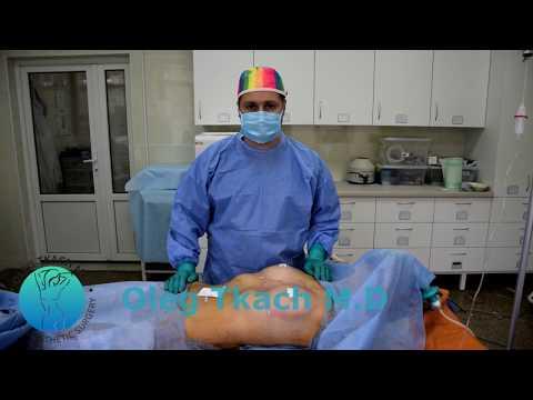 Alisin ang mga marka dumukwang sa breast surgery