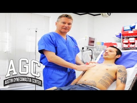 Educational Video: Gynecomastia Surgery Recovery Advice