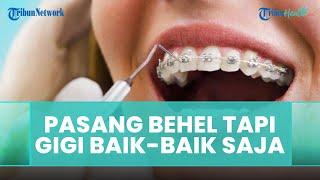 Tidak Ada Masalah Gigi, Bolehkah Pasang Behel? Ini Penjelasan Dokter