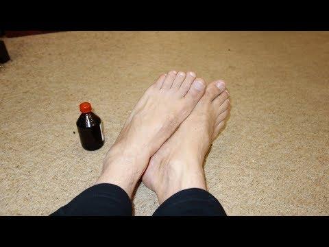 Wie die trockenen Nägel auf den Beinen zu behandeln