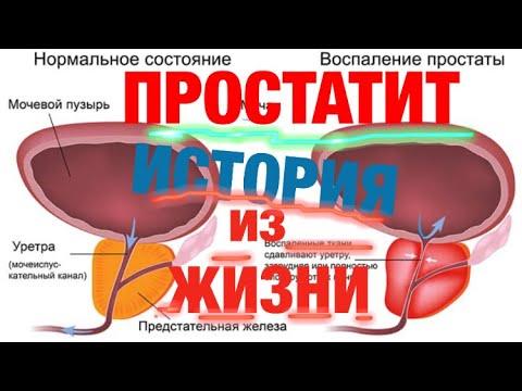 Urotol prosztatitis