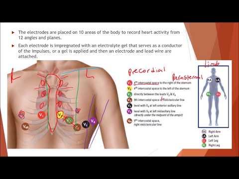NHA EKG and Cardiovascular Testing Module 13. Medical assistant ...