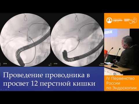 Восстановление непрерывности общего печеночного протока после ятрогенного повреждения