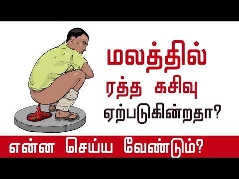 மலத்தில் ரத்த கசிவு ஏற்படுகின்றதா?  Blood in Stool   Rectal Bleeding   Tamil tips