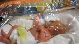Premature Baby Labor at 25 Weeks Gestation - mum and dad's story 😀