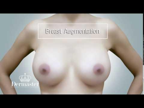 เต้านม implants ราคา Allergan