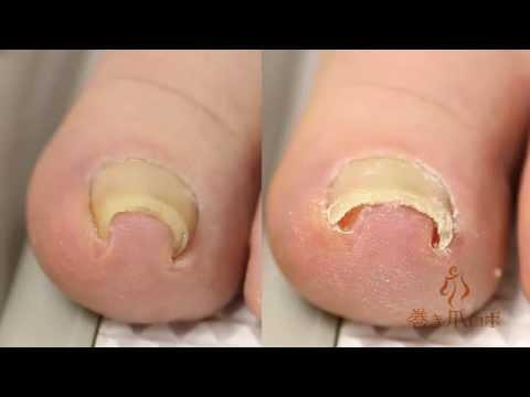 腳趾甲向內生長變形該怎麼辦?只要30分鐘就能把指甲恢復 | Giga Circle
