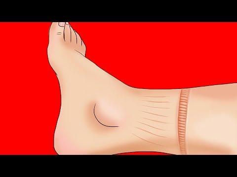 Las causas de la hipertensión esencial