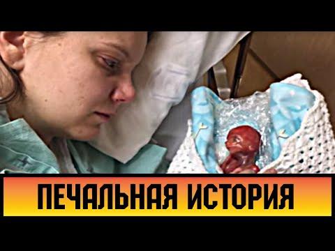 Ее малыш родился на 18-ой неделе. Она показала его всему миру!