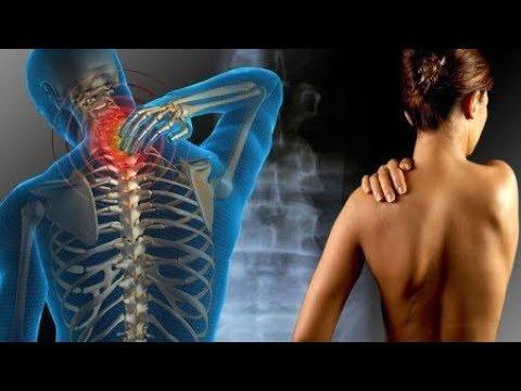 Moto bene o male in osteocondrosi