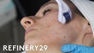 Why Microneedling Is The Best Acne Scar Treatment | Macro Beauty | Refinery29