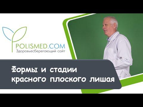Плоский красный лишай: самое эффективное лечение у человека
