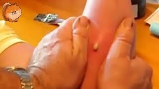 Best Biggest Pimple Pop Ever , Removal Cyst at home Very funny [cyst]