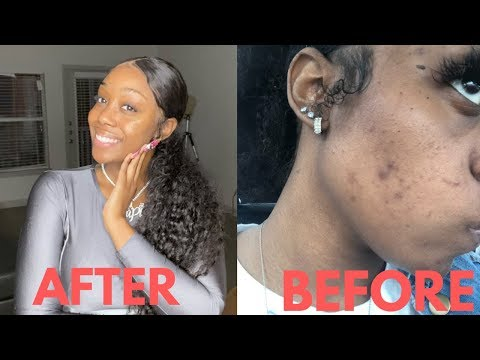 HOW I CLEARED MY DARK MARKS / ACNE (REAL RESULTS)!!!