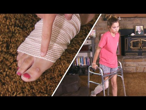 How 12-Year-Old Contracted Flesh-Eating Bacteria
