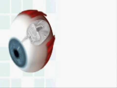 Szemészet szaruhártya szem felépítése