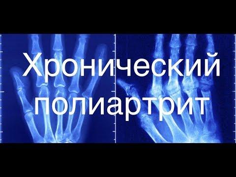 Хронический полиартрит