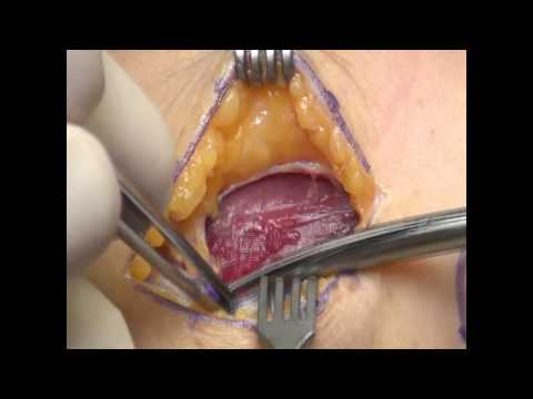 Combined Extensor/ Supinator Aponeurotomy for Treatment of Lateral Epicondylitis