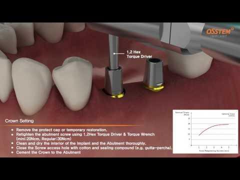 Установка имплантов OSSTEM  и протезирование