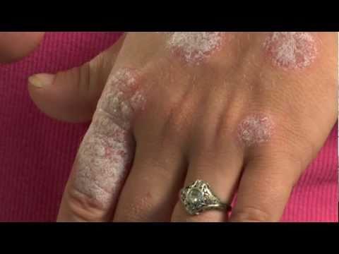 La cura di gravidanza di eczema umida diventante