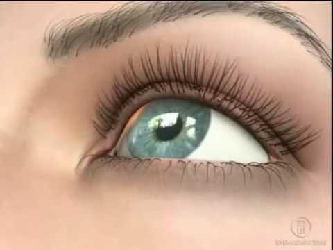 Коррекция зрения при синдроме пигментной дисперсии