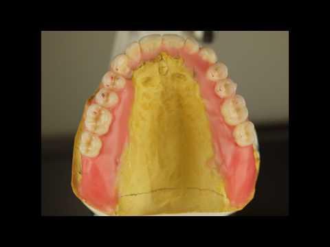 Immediate denture steps