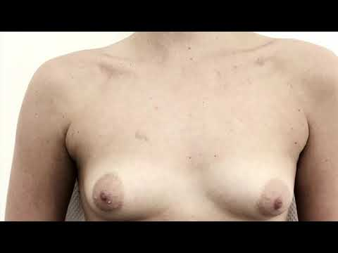 Powiększanie piersi cena w Nowosybirsku