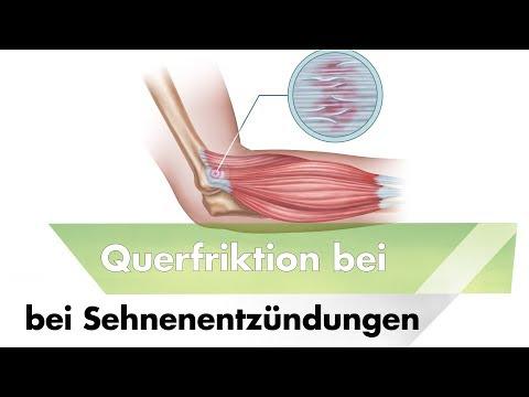 Schmerz bei einem Punkt in der Halsregion des Rückens