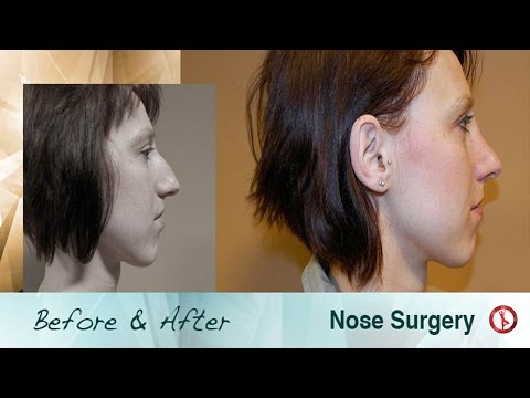 Before-and-After-Nose-Job-Surgery-in-Czech-Republic-Europe