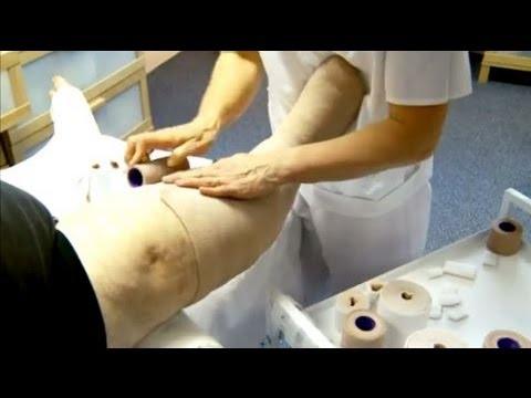 Lendenwirbelsakral intervertebrale Osteochondrose