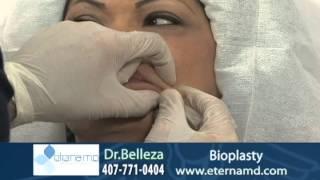 Bioplasty Restylane