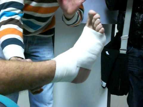 Dolore alla caviglia in estensione