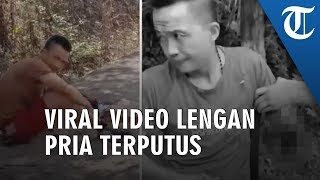 Viral Video Seorang Pria Terduduk di Samping Lengannya yang Terputus Ditabrak Mobil
