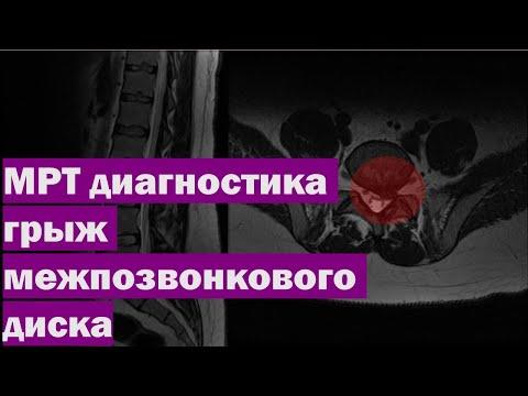 Упражнение при остеохондрозе с картинками