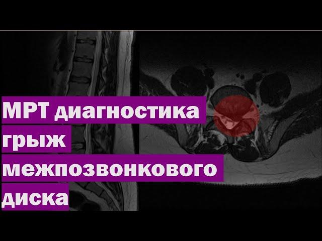 МРТ диагностика грыж межпозвонкового диска