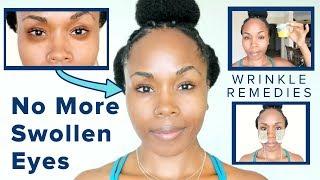 How to Get Rid of SWOLLEN EYES & DARK CIRCLES & TREAT WRINKLES Under Sleepy Eyes FAST & NATURALLY!