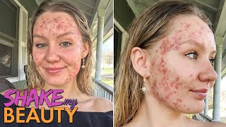 My Acne Became A 'Monster' At 20 | SHAKE MY BEAUTY